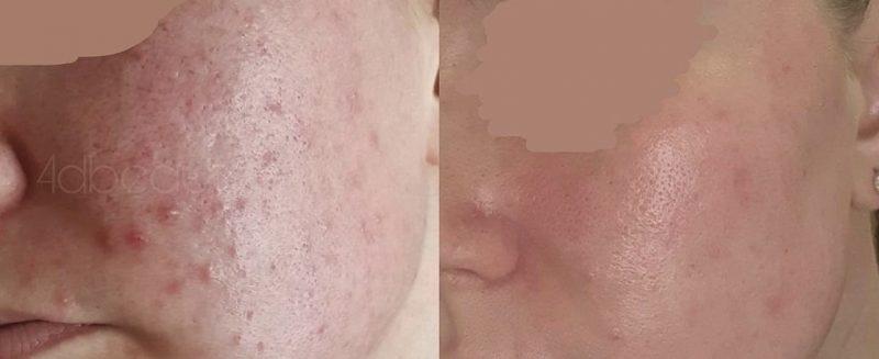 Acne & Eczema (1)