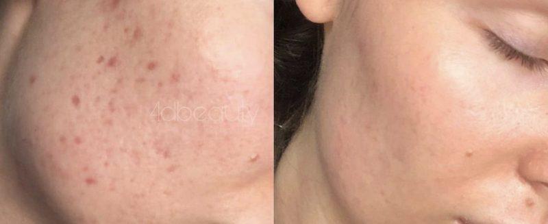 Acne & Eczema (2)