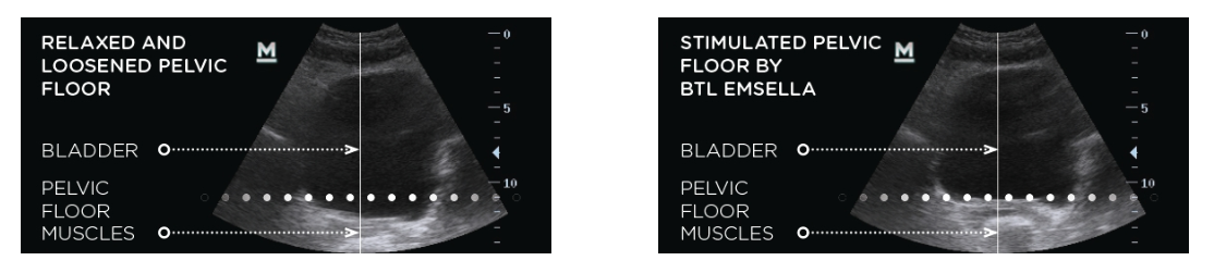 Ultrasound image of pelvic area before and after EMSELLA treatment